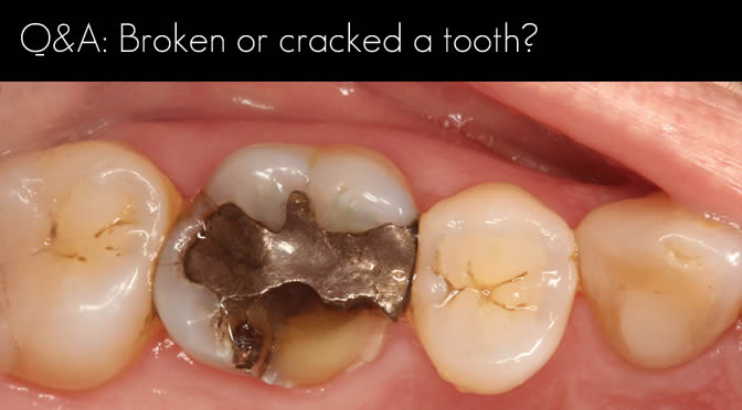 open cracked tooth