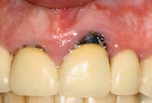 Crown with recurrent tooth decay