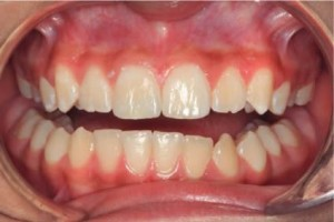 Fractured Front Tooth - After Composite Bonding