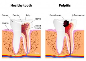 Healthy Tooth vs Pulpitis