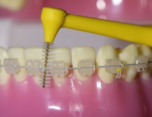 Interdental brush and braces