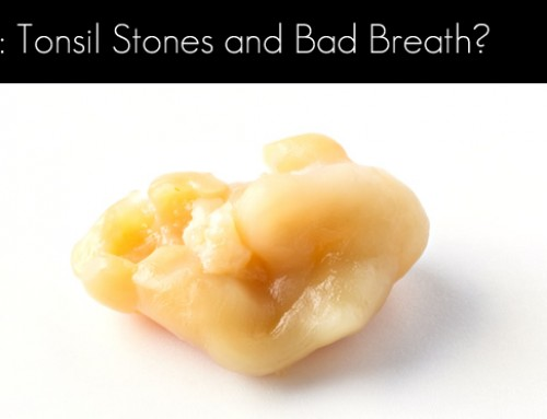 I Have Tonsil Stones and Bad Breath