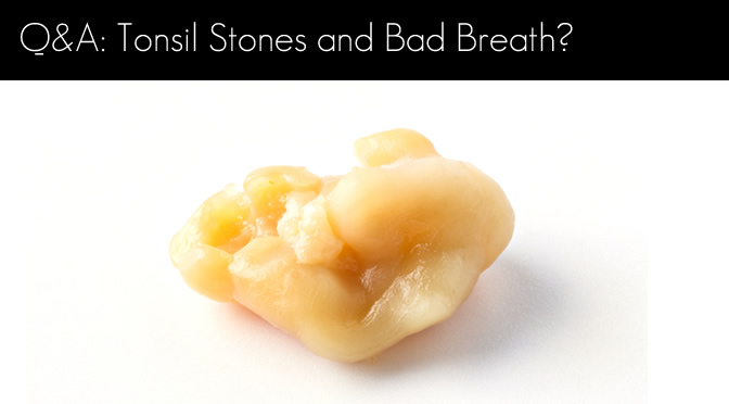 Tonsil Stone and Bad Breath?
