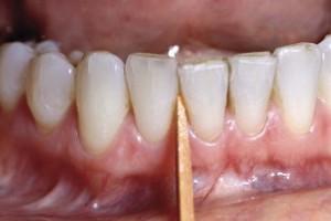 Toothpick in between teeth