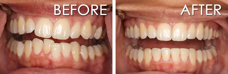 invisalign before and after crowding