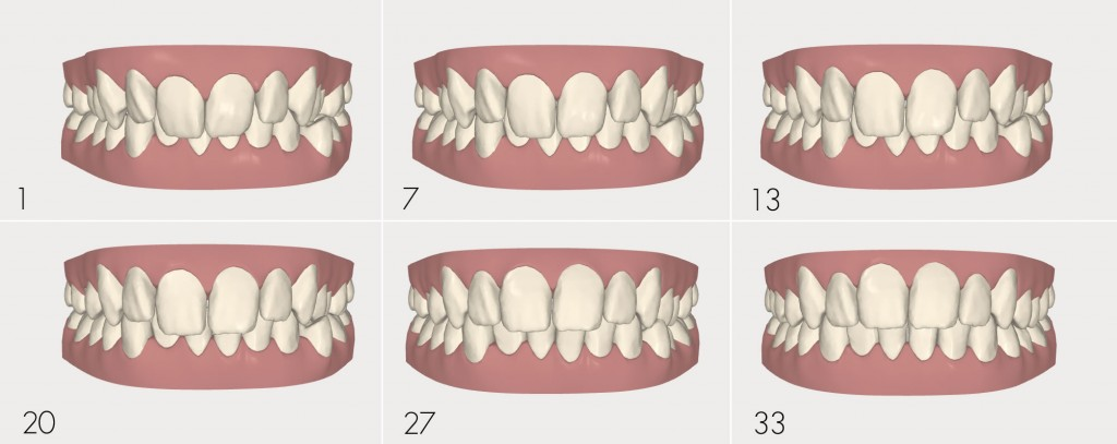 invisalign series tooth movement