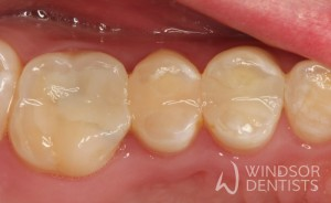 Amalgam Replacement 01 After