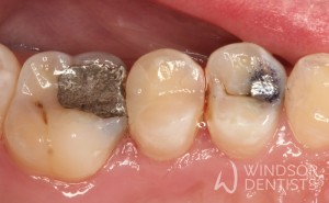 Amalgam Replacement 01 Before