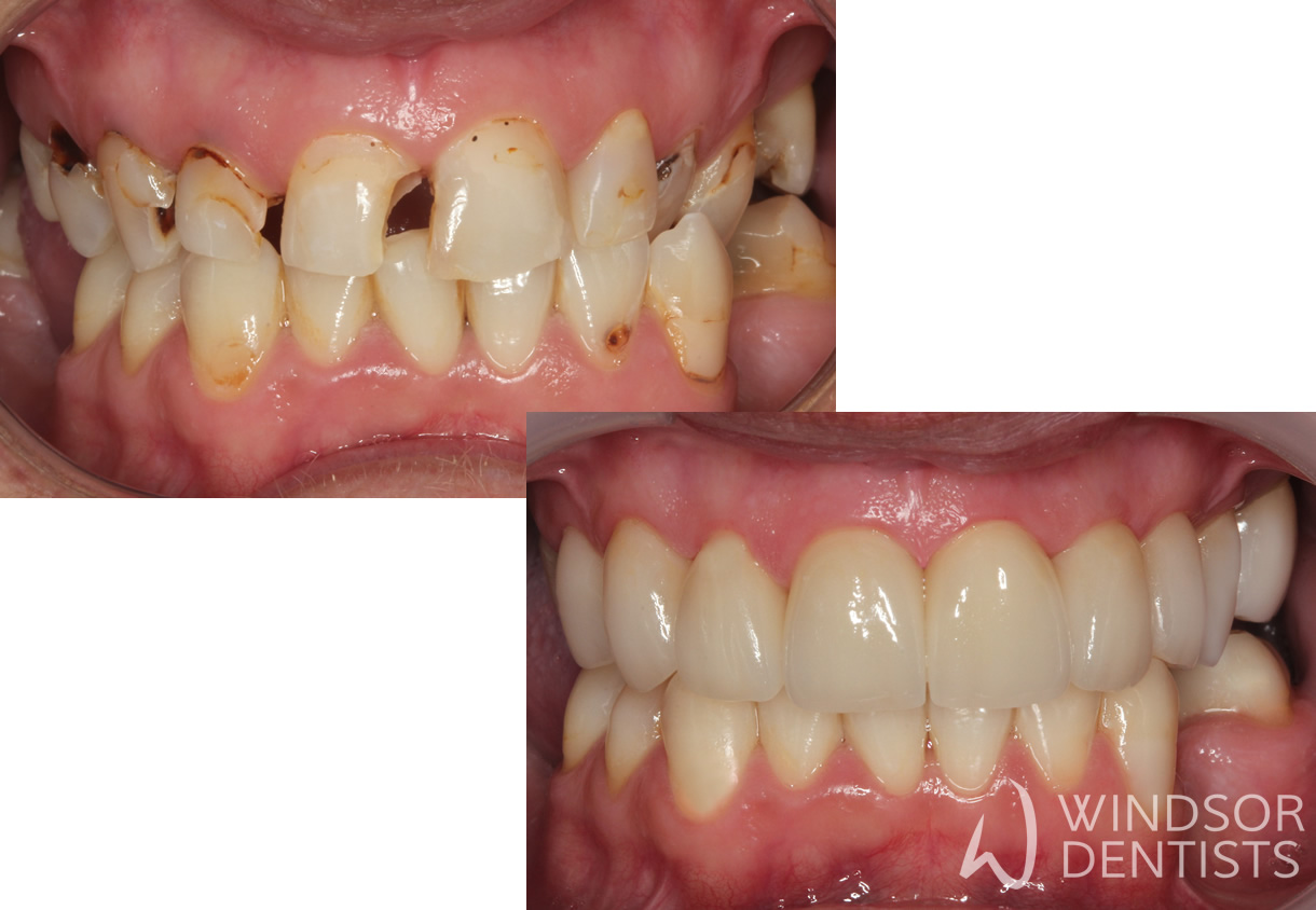 full mouth reconstruction with porcelain crowns