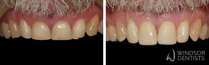 worn front teeth composite veneers