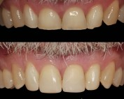 worn front teeth composite veneers before after