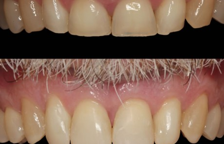 worn front teeth composite veneers before after