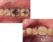 zirconia crown and white composite fillings