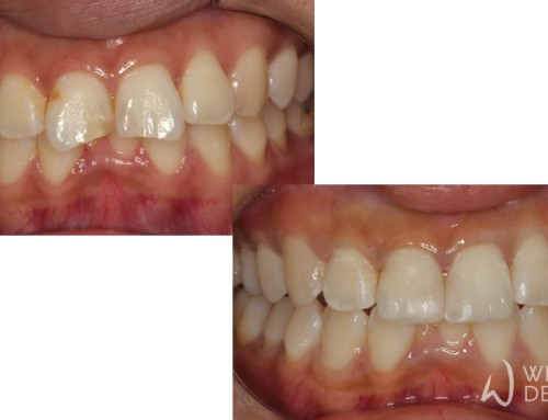 Chipped and Worn Teeth