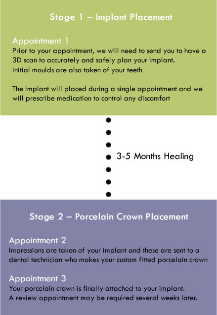 dental implant placement stages