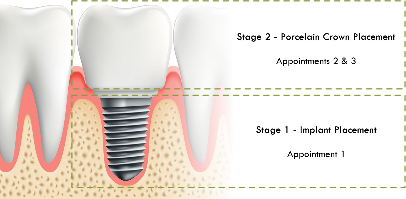 implant placement stages diagram