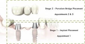 multiple implant placement diagram