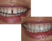 6 Porcelain veneers closing gap