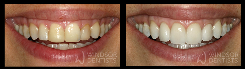 6 porcelain veneers