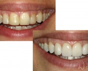 6 porcelain veneers replacing composite veneers