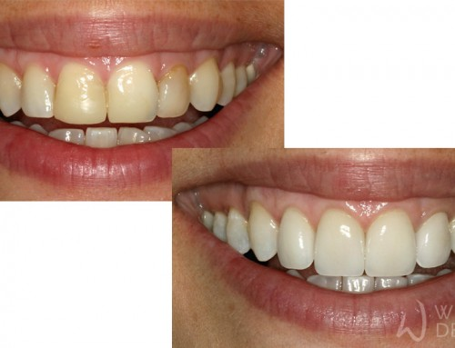 Replacing Composite Fillings with Porcelain Veneers
