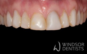 old fillings before porcelain veneers