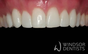 chipped worn teeth after composite veneers