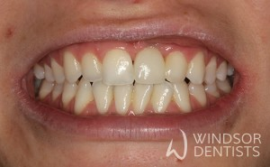 dental implant missing front tooth after