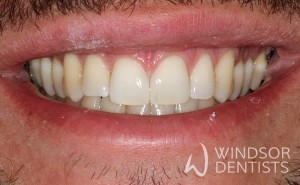 diastema closure after teeth