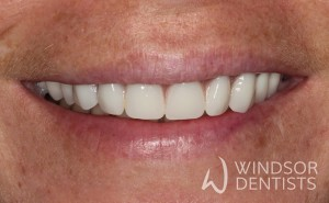 immediate denture after