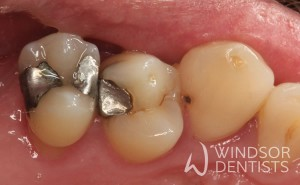 leaking fillings tooth decay