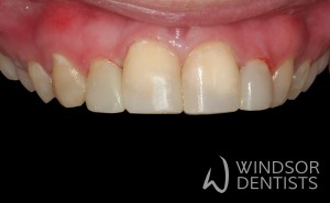 tooth decay and composite veneers after