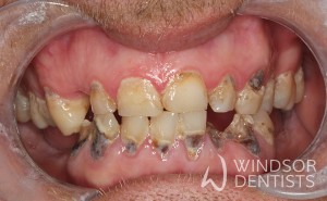 dental decay immediate dentures before
