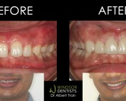 gappy smile porcelain veneers