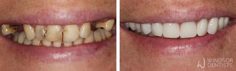 immediate dentures before after