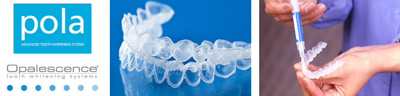 teeth whitening trays pola opalescence