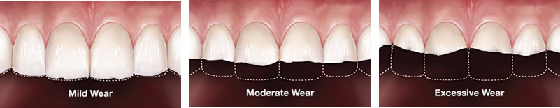 tooth wear progression
