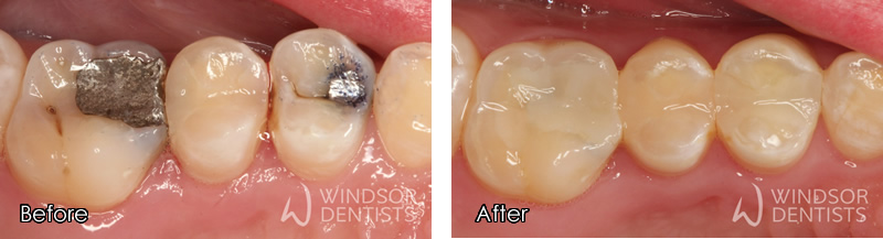 amalgam replacement before and after