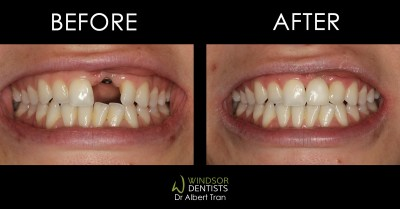 dental implant replacing front missing tooth