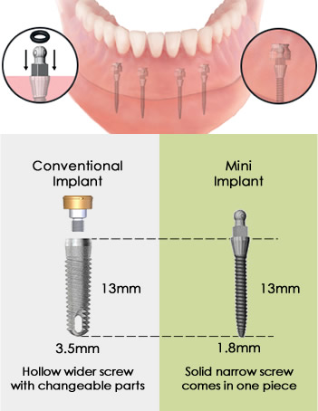 mini implants vs conventional implants