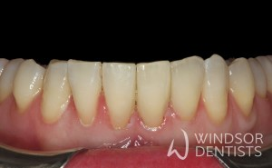 black triangle bioclear after