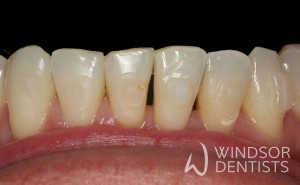 black triangle before bioclear
