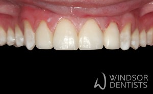 chipped teeth composite bonding after
