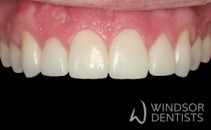gappy teeth after porcelain veneers