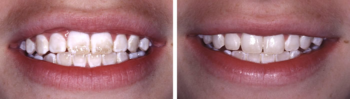 enamel microabrasion before and after