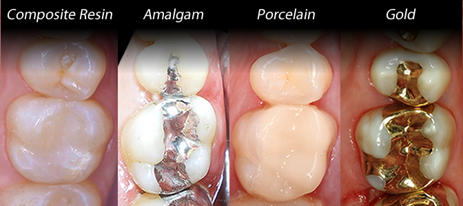 composite resin, amalgam, porcelain and gold restorations