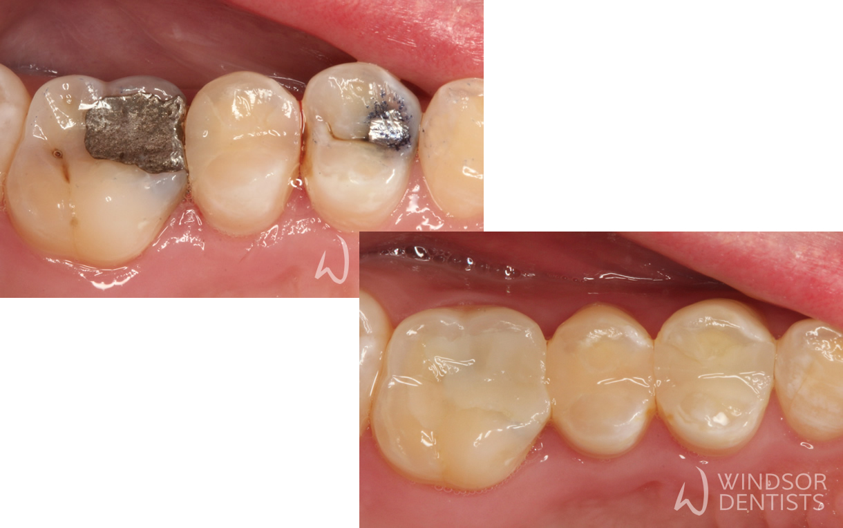 Amalgam Replacement 01 Before and After