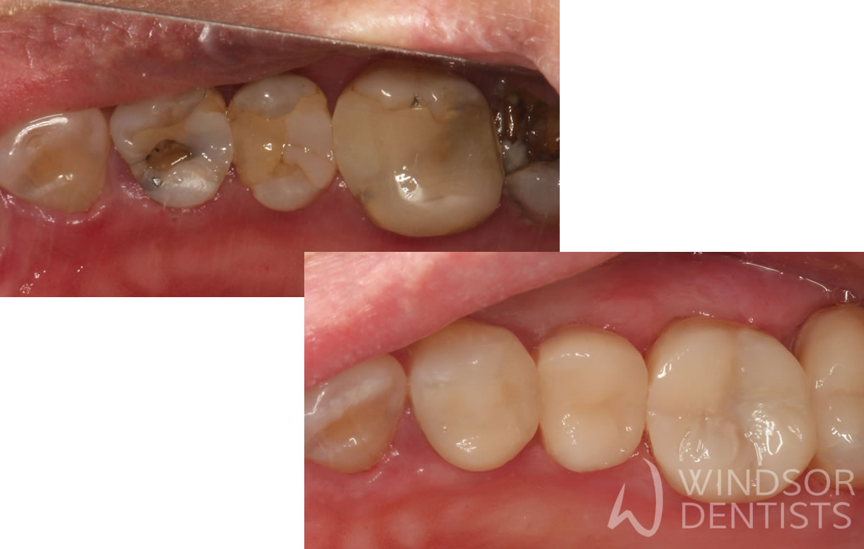 Replacing leaking white composite fillings