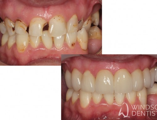 Full Mouth Reconstruction & Tooth Decay