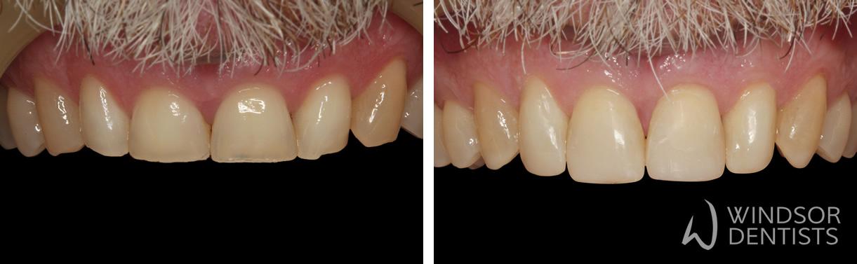 worn_front_teeth_composite_veneers - Windsor Dentists